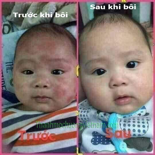 bệnh chàm sữa ở trẻ sơ sinh