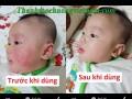 Kem Bôi Da Thuần Mộc Thanh Mộc Hương – 100% Thành Phần Từ Thiên Nhiên
